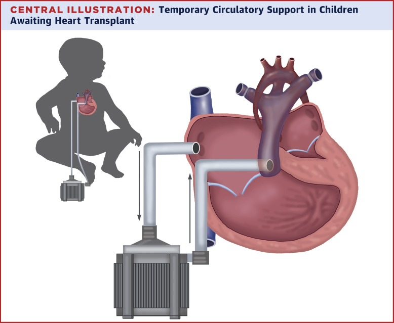 Temporary circulatory support in us children awaiting heart central illustration ccuart Images