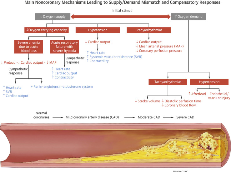 Patho of myocardial infarction
