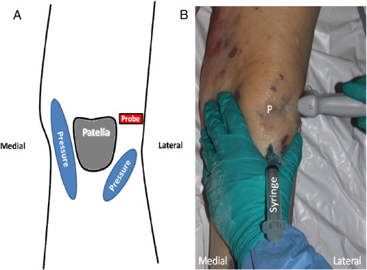 Novel joint cupping clinical maneuver for ultrasonographic download high res image 221kb ccuart Gallery
