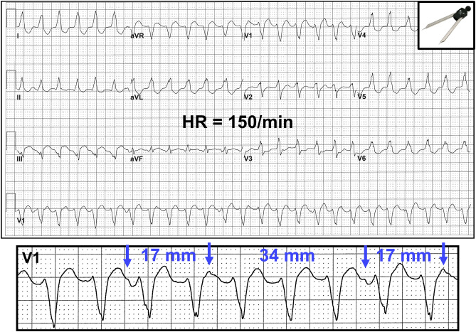 Initial Evaluation And Management Of Wide Complex Tachycardia A Simplified And Practical Approach Sciencedirect