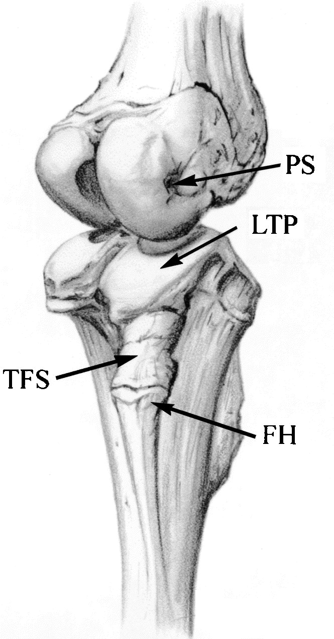 The anatomy of the posterolateral aspect of the rabbit knee bony anatomy of the rabbit knee showing the slope of the lateral tibial plateau ltp fibular head fh tibiofibular syndesmosis tfs and popliteal ccuart Gallery
