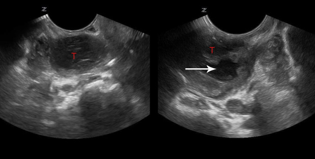 Transoral Point Of Care Ultrasound In The Diagnosis Of