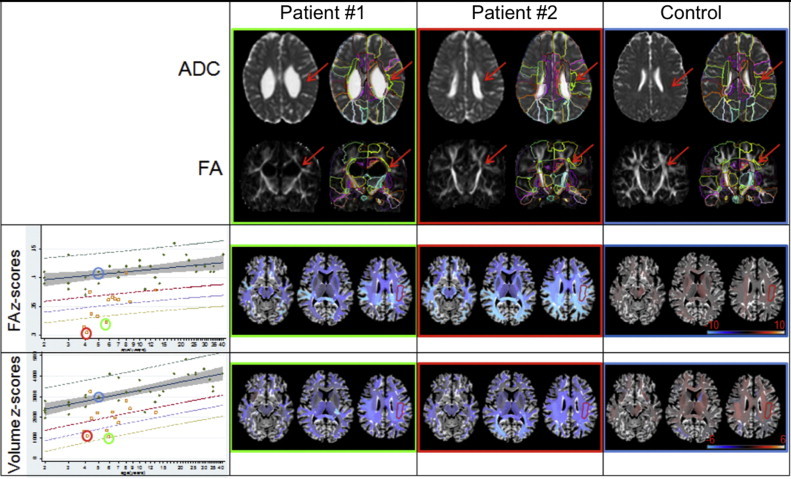 Quantitative Evaluation Of Brain Development Using Anatomical Mri