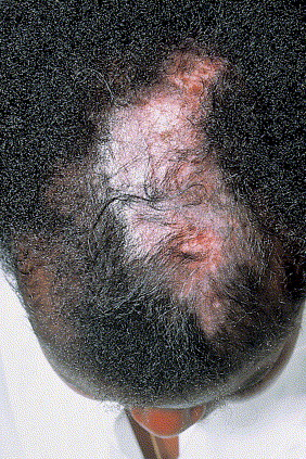 Hair and nail involvement in lupus erythematosus sciencedirect advanced discoid lupus erythematous lesions of the scalp scarring alopecia on dark skin mottled areas of hyper and hypopigmentation are particularly sciox Image collections