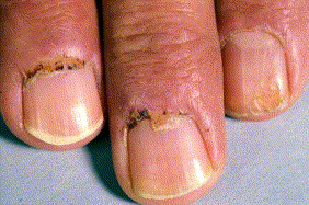 Hair and nail involvement in lupus erythematosus sciencedirect nail fold hyperkeratosis ragged cuticles and splinter hemorrhages in systemic lupus erythematosus sciox Image collections