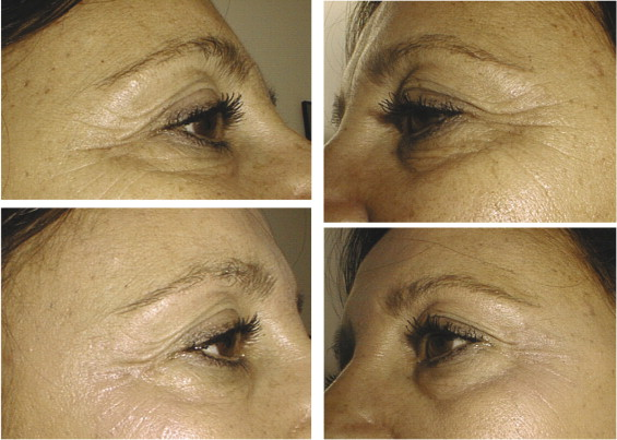 Hyaluronic acid–based fillers: theory and practice