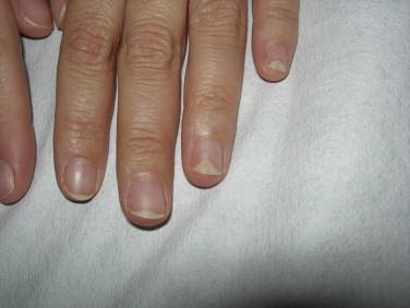 Hirsute and smooth muscle nail