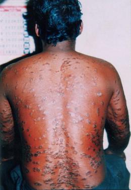 padarthamarai skin disease