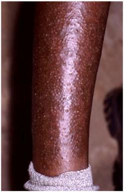 diabetes selvagem leather