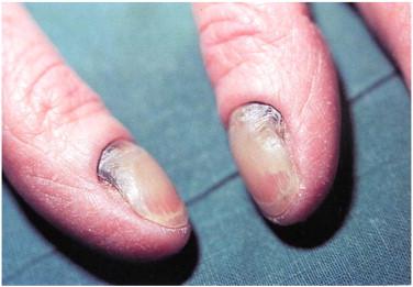 Diseases mimicking onychomycosis - ScienceDirect