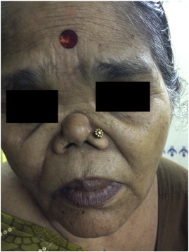 Nasal septal ulceration - ScienceDirect