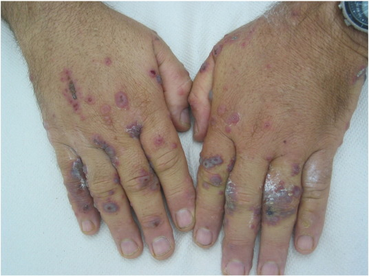 Acral manifestations of Sweet syndrome (neutrophilic dermatosis of the  hands) - ScienceDirect