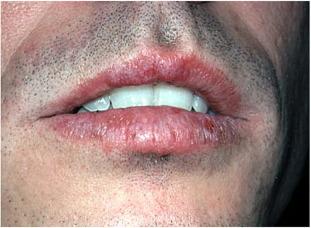 Diseases of the lips - ScienceDirect