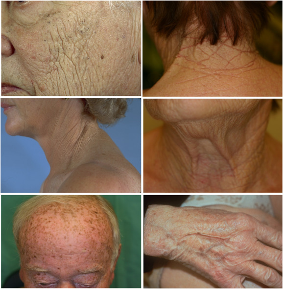 Aesthetic aspects of skin aging, prevention, and local