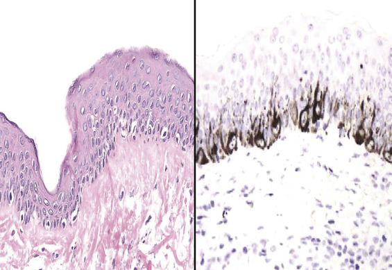 Selected benign cutaneous lesions that may simulate melanoma