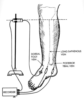 Differences In Pressures Of The Popliteal Long Saphenous And