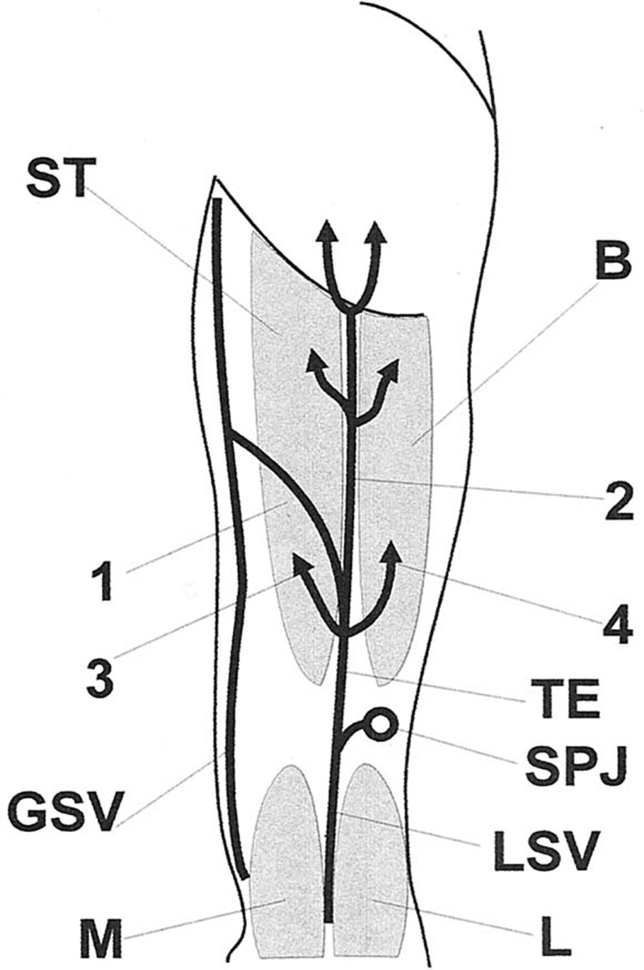 The thigh extension of the lesser saphenous vein: From Giacomini\'s ...