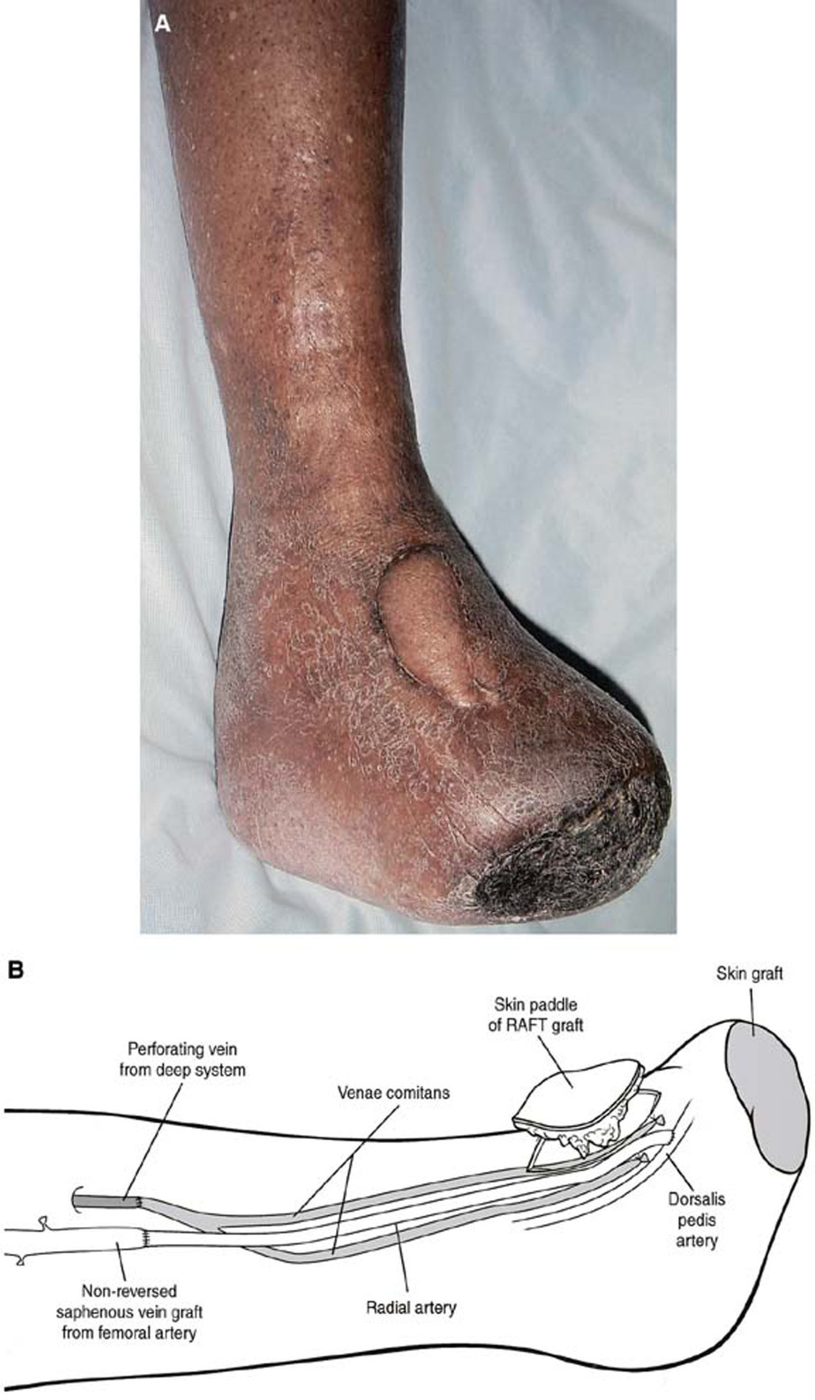 Radial artery flow-through graft: A new conduit for limb salvage ...