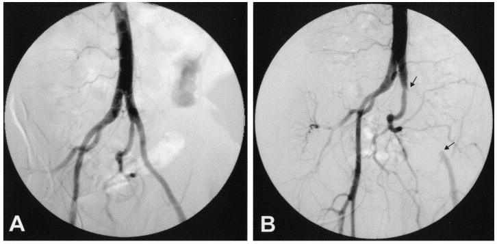 External iliac artery endofibrosis: a new possible predisposing ...