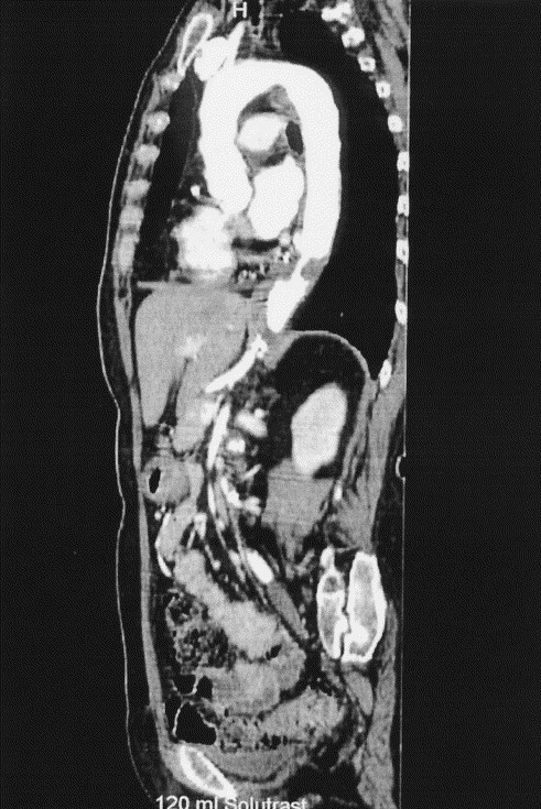 Cancer abdominal aorta, Anevrismul aortic abdominal