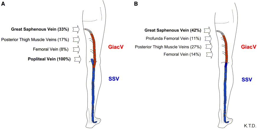 Prevalence Anatomic Patterns Valvular Competence And Clinical