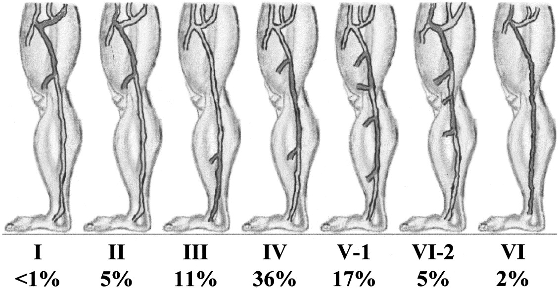 Patterns Of Saphenous Reflux In Women With Primary Varicose Veins