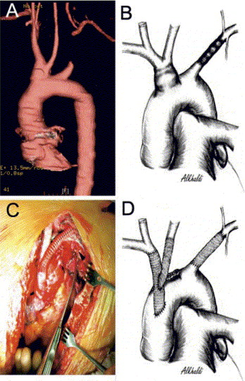 Successful Repair Of Blunt Injury Of Aortic Arch Branches In The