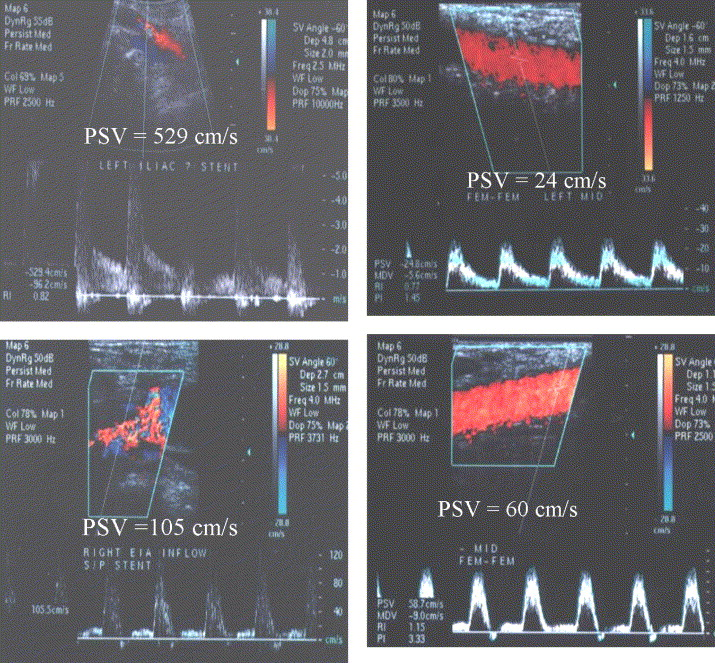 Duplex Ultrasound Criteria For Femorofemoral Bypass Revision