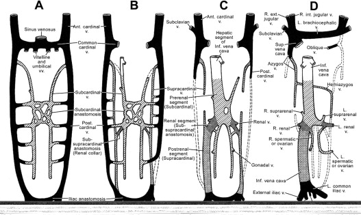 The Hemodynamics And Diagnosis Of Venous Disease Sciencedirect