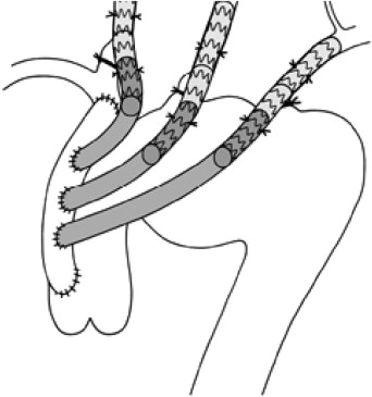 Novel Sutureless Telescoping Anastomosis Revascularization Technique