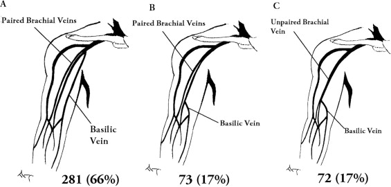Prevalence of variant brachial-basilic vein anatomy and implications ...