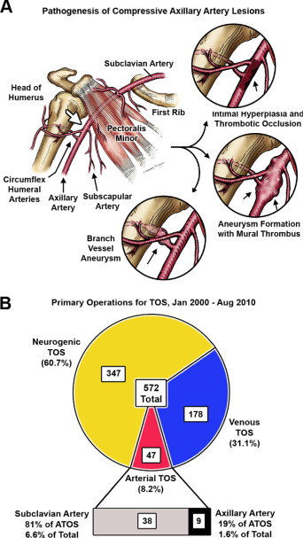 Positional compression of the axillary artery causing upper ...