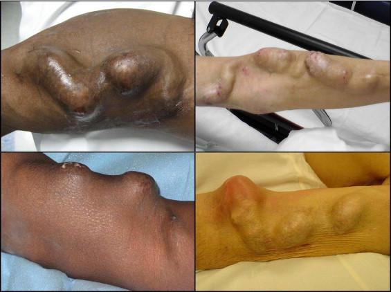 management of true aneurysms of hemodialysis access fistulas
