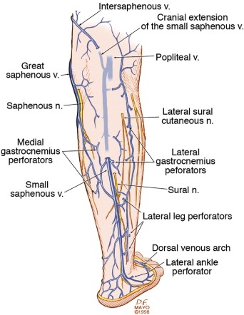 The care of patients with varicose veins and associated