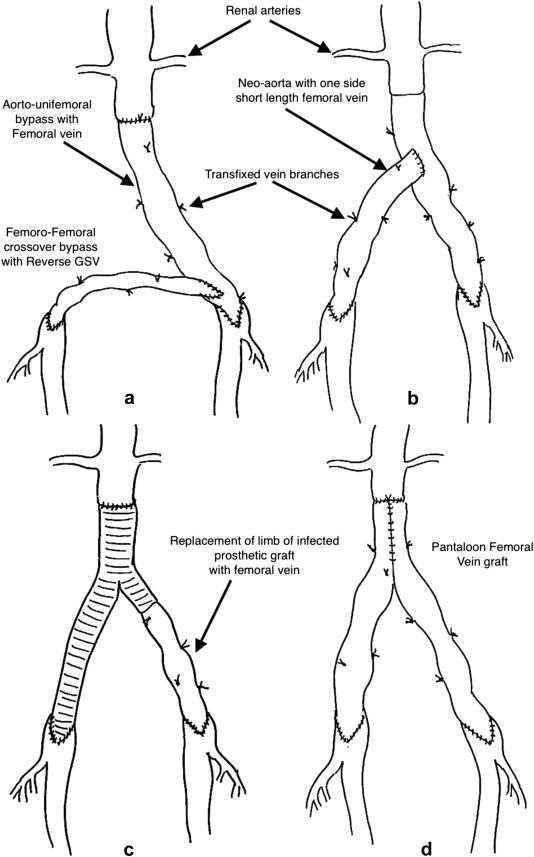 """Pantaloon femoral vein graft as """"neoaorta"""" in infected aortic ..."""