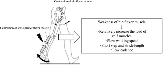 Hip flexor muscle dysfunction during walking at self-selected and ...