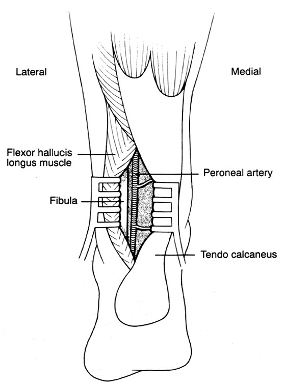 The posterior approach to popliteal-crural bypass - ScienceDirect