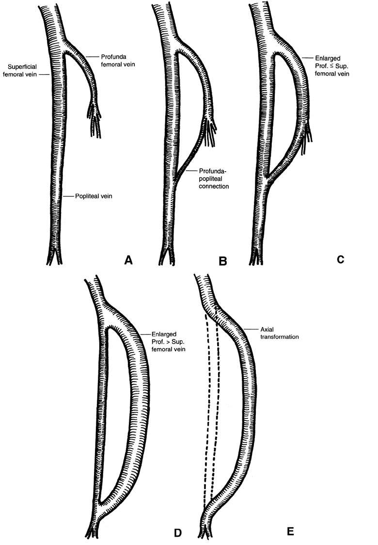 Axial transformation of the profunda femoris vein - ScienceDirect