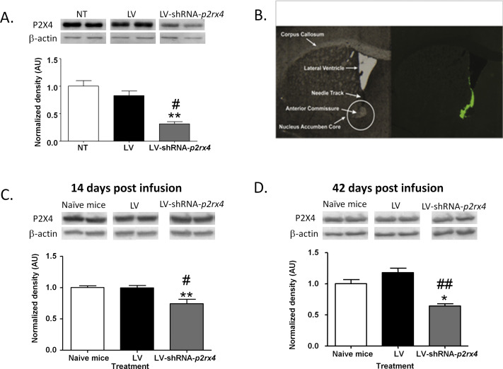 Reduced expression of purinergic P2X4 receptors increases