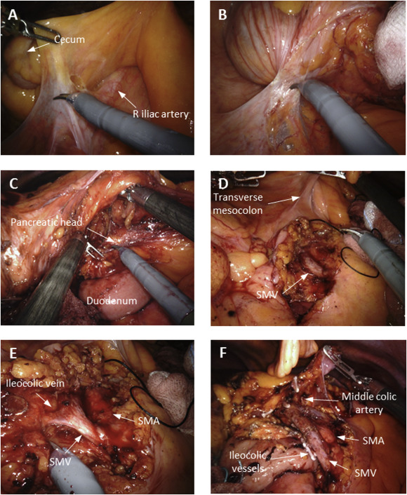 Suprapubic Approach For Robotic Complete Mesocolic Excision In Right