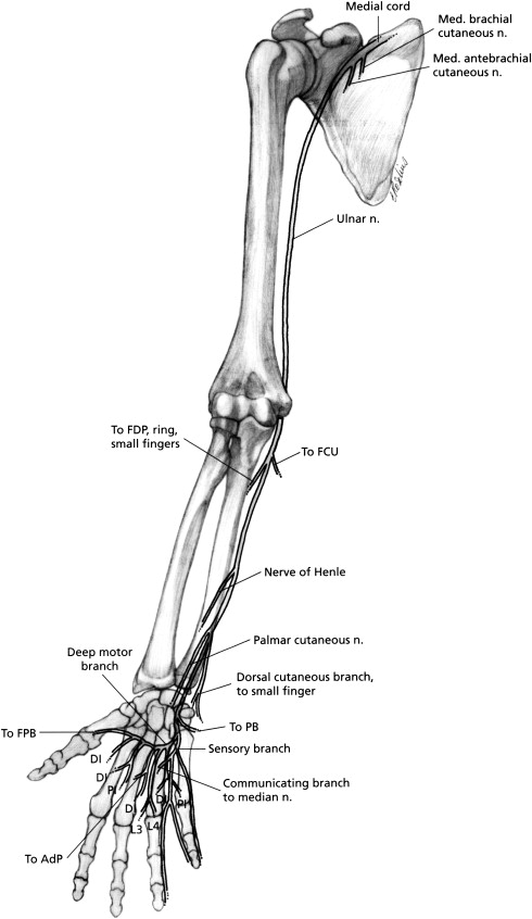 Ulnar Nerve Laceration And Repair Sciencedirect