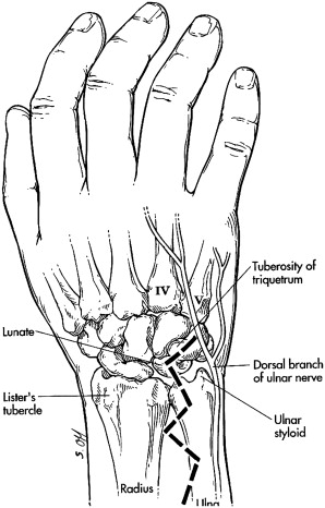 Wrist Anatomy And Surgical Approaches