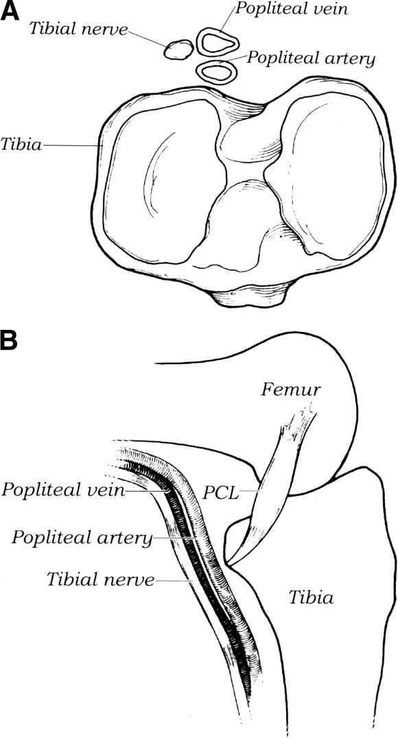 Proximity Of The Posterior Cruciate Ligament Insertion To The