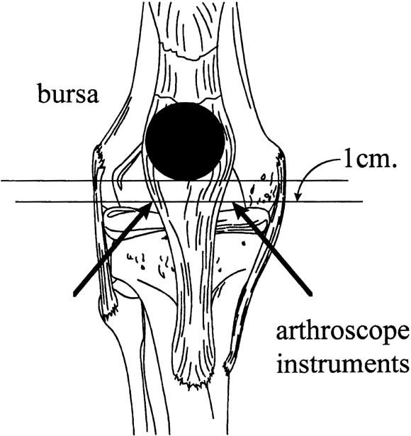 Endoscopic Bursal Resection The Olecranon Bursa And Prepatellar
