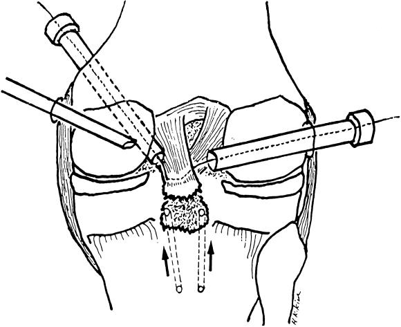 Arthroscopic Suture Fixation For Bony Avulsion Of The Posterior