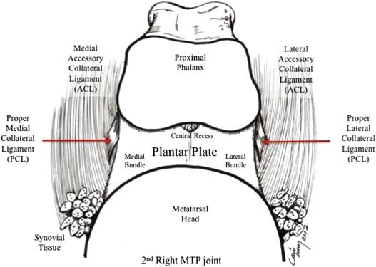 Lesser Metatarsal Phalangeal Joint Arthroscopy Anatomic Description