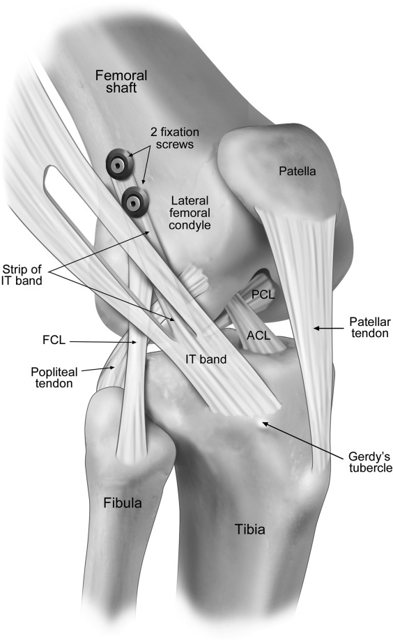 Biomechanical Results Of Lateral Extra Articular Tenodesis