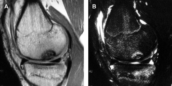 ocd lesion medial femoral condyle