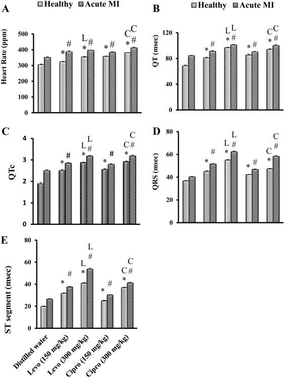 Cardiotoxic effect of levofloxacin and ciprofloxacin in rats