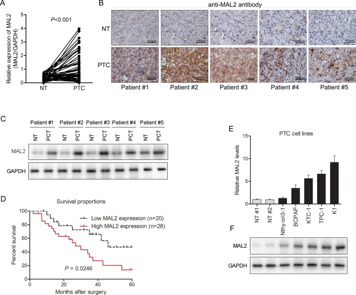 MiR-129 regulates growth and invasion by targeting MAL2 in